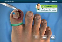 Ingrown Toenail / Ingrown nails -- when the nail grows into the flesh instead of over it -- usually affect the toenails, particularly the big toe. People with curved or thick nails are most susceptible, although anyone can suffer from ingrown nails as a result of an injury, poorly fitting shoes, or improper grooming of the feet.