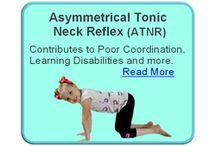 Asymmetrical Tonic Neck Reflex ATNR