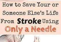 save stroke pasient.