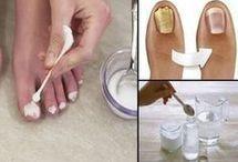 Elimina el hongo de las uñas rapido