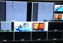 Live Case Transmission from Indraprastha Apollo Hospital for India Live 2017 / Live Case Transmission from Indraprastha Apollo Hospital for India Live 2017 on 2nd March, 2017
