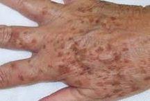 manchas de manos y cara