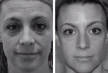 Using Face Acupressure And Facial Toning / Wendy Wilken's Facial Toning Workout Program And Holistic Facelift Exercise Methods