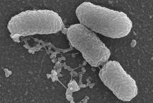 Células Procariontes / Ausência de carioteca individualizando o núcleo celular Ausência de algumas organelas; Pequeno tamanho devido ao fato de não possuírem compartimentos membranosos originados por evaginação ou invaginação;  Possuem DNA na forma de um anel não-associado a proteínas (como acontece nas células eucarióticas, nas quais o DNA se dispõe em filamentos espiralados e associados à histonas);  O DNA fica disperso no citoplasma.  REINOS: Monera (bactérias, cianofitas)