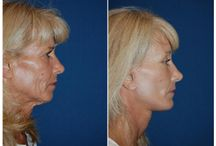 Plastic Surgery / Related to Plastic Surgery