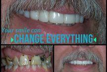 Dental Changes