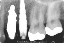 9 years follow-up of a truly anatomic ceramic dental implant
