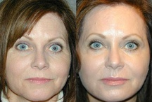 VolumaLift™ Injectable Facelift - Before and After Photos / http://www.adamscheinermd.com/