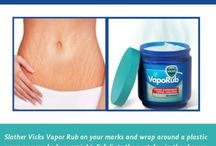 how to rid of stretch marks