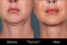 "Kybella and Belkyra Injectable / Before and after photos of patients who had Kybella, a non-surgical treatment to reduce the appearance of ""double chins"""