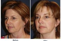 Endoscopic Brow Surgery / Before and After photo of clients