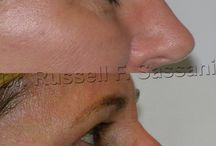Eyelid Surgery Before & After Pictures / Here you can view actual patient before and after photographs from Dr. Russell F. Sassani certified by The American Board of Plastic Surgery. These photographs represent typical results.