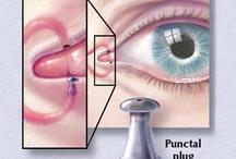 Eye procedures