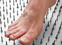voeten en neuropathie