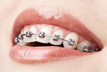 Orthodontics (Braces)