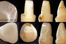 preparaciones dentarias