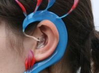 Hearing: Devices / Hearing Aids, Cochlear Implants, Hearing devices and technological advances in assisting hearing and curing hearing loss
