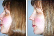 Rhinoplasty / Nose surgery