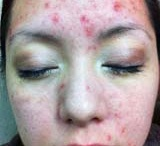 AQ Acne Results