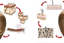 FUT and FUE hair transplant Surgery in India / All about FUT and FUE hair transplant Surgery