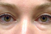 Cure For Eye Bags? Use Facial Rubbing Workouts