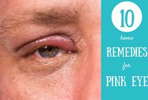 Home Remedies For Pink Eye / How To Get Rid Of Pink Eye