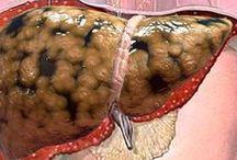 salud hígado graso