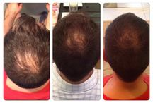 Transformations: Before and Afters / Some of our Star Clients transformations