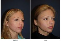 Facial Implants / Before and After Photos of Clients