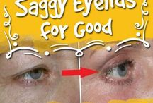 Saggy eye lids