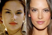 Alessandra Ambrosio Before and After / Alessandra Ambrosio before and after plastic surgery photos