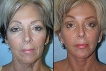 Non-Invasive And Holistic Facelift Via Face Toning Exercises / Eradicate Years Off Your Appearance Via Face Massaging Aerobics