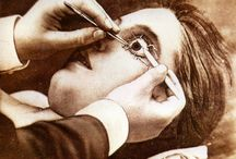 ophthalmology history