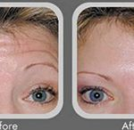 Botox/Dysport – Before & After / If you are a patient who suffers from wrinkles, crows feet and other facial lines, you may be debating whether you should pursue Botox/Dysport. Inverness Dermatology offers both injection procedures. If you are a patient in the Hoover, Birmingham, or Chelsea, Alabama areas, check out Inverness Dermatology Botox/Dysport before and after pictures to see the talented work of Dr. Jacobson and Dr. Marks.