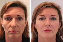 Fillers / Dermal Fillers at our Cosmetic Clinic