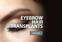 FUE Eyebrow Hair Transplant & Restoration Surgery