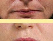 Saggy Jowl Removal With Yoga Facial Exercises