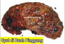 CYST BUAH PINGGANG