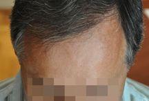 hajbeültetés / Sikos Hajbeültetés Klinika