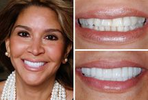 Smile Gallery / Actual patients from the Texas Center for Cosmetic & Implant Dentistry in The Woodlands, TX.