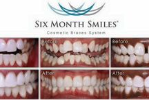 Six Months Smile / Cosmetic Braces System