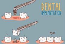 Implanty / Implanty