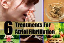 Atrial Fibrillation Natural Treatment