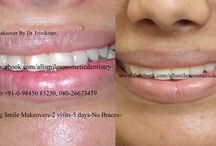 smile designing cost in Bangalore / Smile designing by cosmetic dentist Dr Trivikram Rao. in Bangalore.Cosmetic dentistry, Smile designing, Smile makeover, Smile Sculpting, Aesthetic Dentistry.Smile designing by expert cosmetic dentist in Bangalore.