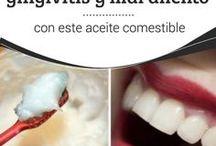 gingivitis,sarro y halitosis