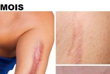 Eliminare cicatrici