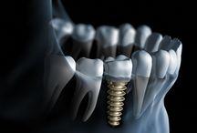 Implantologia / Implanty najlepszych marek !