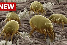scabies-rid