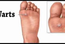 warts on feet treatment vancouver