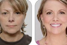 The Ultimate DIY No Surgery Facelift With Facial Gymnastics Treatments / Overcome The Ever-Lasting Aging Predicament Utilizing Face Acupressure And Face Yoga
